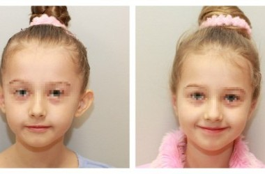 Atlėpusių ausų operacija vaikams